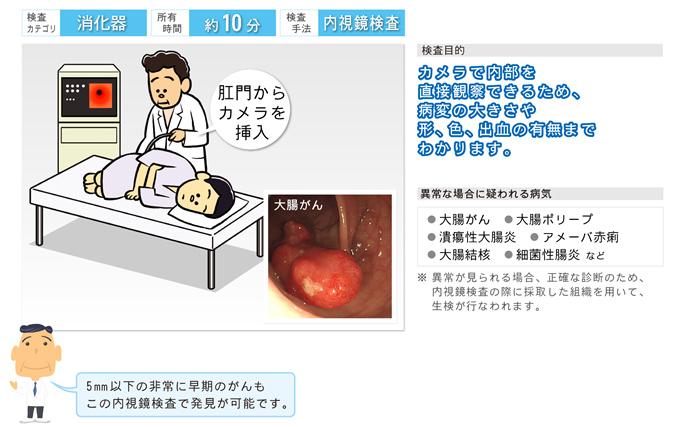 画像:CF(大腸内視鏡)