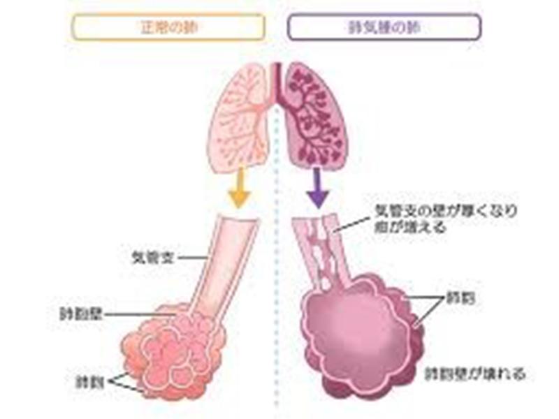 画像:肺気腫とは