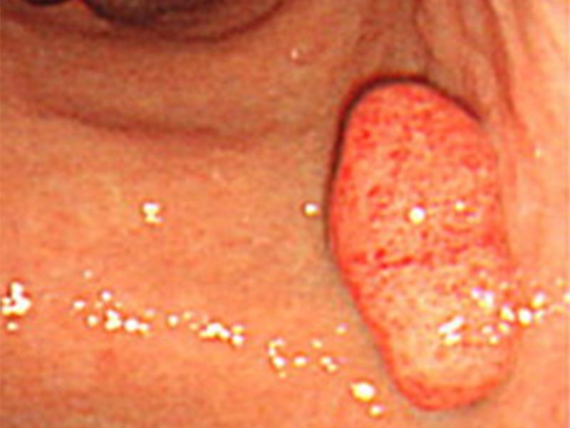 画像:胃ポリープ