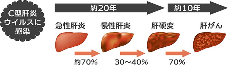 画像:肝炎の自然経過