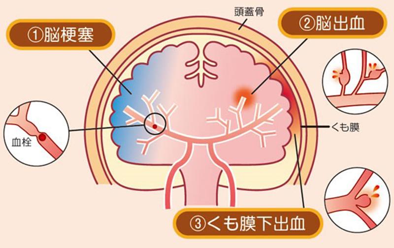 画像:脳卒中とは